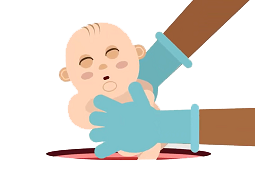 Birth factors influence infant gut microbiome, risk of obesity & allergies